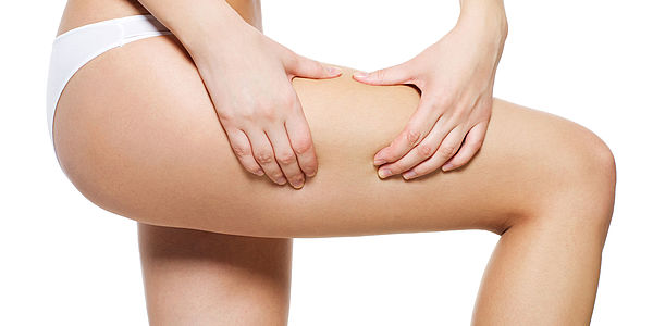 Common Causes of Cellulite